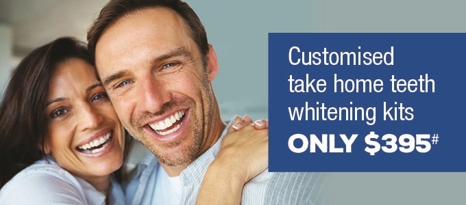 Teeth Whitening $395 GV IMAGE