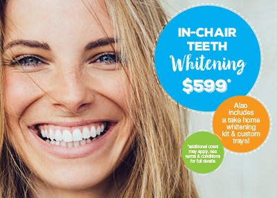 In-Chair Teeth Whitening $599 Special Offer IMAGE