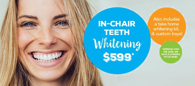 In-Chair Teeth Whitening $599 IMAGE