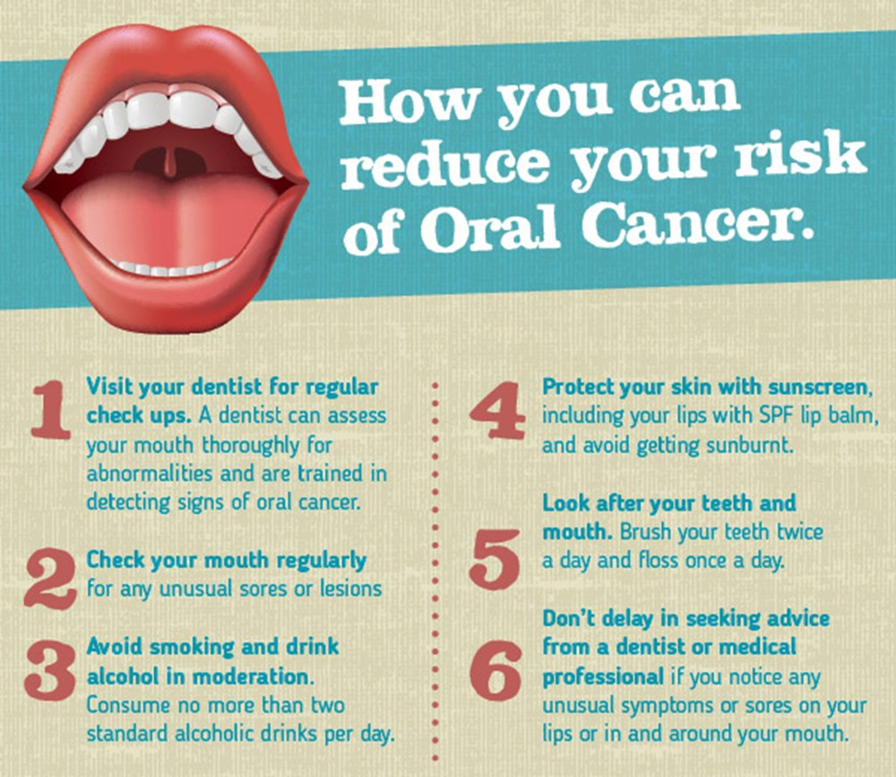 Top 3 causes of oral cancer – Are you at risk? :: Pacific Smiles